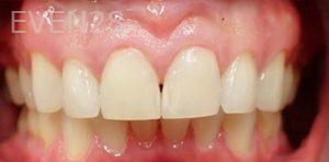 Jeremy-Jorgenson-Dental-Bonding-after-1