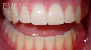 Jeremy-Jorgenson-Dental-Bonding-after-2