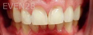 Jeremy-Jorgenson-Dental-Bonding-before-1