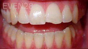 Jeremy-Jorgenson-Dental-Bonding-before-2