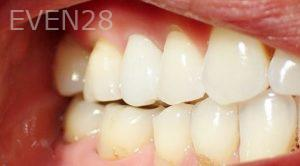 Jeremy-Jorgenson-Dental-Crowns-after-1