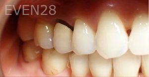 Jeremy-Jorgenson-Dental-Crowns-before-1