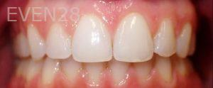 Jeremy-Jorgenson-Invisalign-clear-aligners-after-1