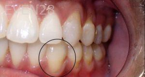 Jeremy-Jorgenson-Invisalign-clear-aligners-after-2