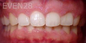 Jeremy-Jorgenson-Invisalign-clear-aligners-after-3