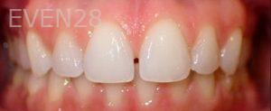 Jeremy-Jorgenson-Invisalign-clear-aligners-before-1