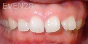 Jeremy-Jorgenson-Invisalign-clear-aligners-before-3