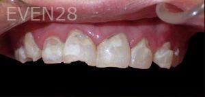 Jeremy-Jorgenson-Smile-Makeover-before-2