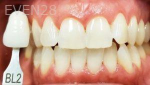Jeremy-Jorgenson-Teeth-Whitening-after-1