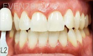 Jeremy-Jorgenson-Teeth-Whitening-after-4