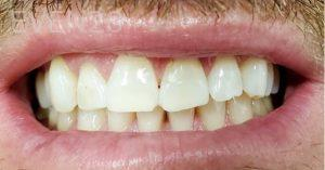 Jeremy-Jorgenson-Teeth-Whitening-after-5