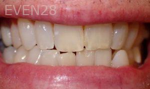 Jeremy-Jorgenson-Teeth-Whitening-before-2
