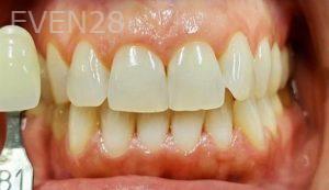 Jeremy-Jorgenson-Teeth-Whitening-before-4