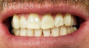 Jeremy-Jorgenson-Teeth-Whitening-before-5