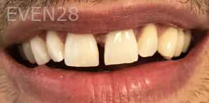 Jocelynn-Vida-Sustaita-Dental-Bonding-After-1