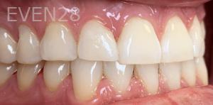 Jocelynn-Vida-Sustaita-Dental-Bonding-After-2