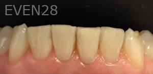 Jocelynn-Vida-Sustaita-Dental-Bonding-After-3