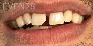 Jocelynn-Vida-Sustaita-Dental-Bonding-Before-1