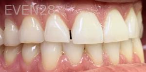 Jocelynn-Vida-Sustaita-Dental-Bonding-Before-2