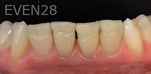 Jocelynn-Vida-Sustaita-Dental-Bonding-Before-3