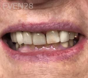 Jocelynn-Vida-Sustaita-Dental-Bridge-After-1