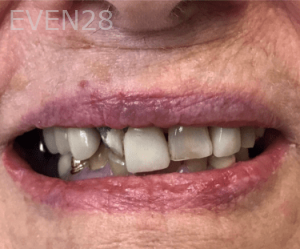 Jocelynn-Vida-Sustaita-Dental-Bridge-Before-1