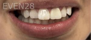 Jocelynn-Vida-Sustaita-Dental-Crown-After-1