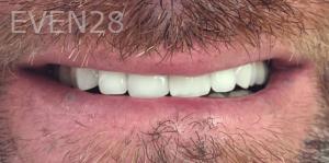 Jocelynn-Vida-Sustaita-Dental-Crown-After-2