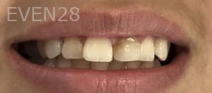 Jocelynn-Vida-Sustaita-Dental-Crown-Before-1