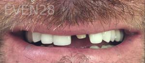 Jocelynn-Vida-Sustaita-Dental-Crown-Before-2