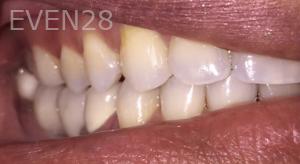 Jocelynn-Vida-Sustaita-Dental-Implant-After-1