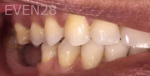 Jocelynn-Vida-Sustaita-Dental-Implant-Before-1