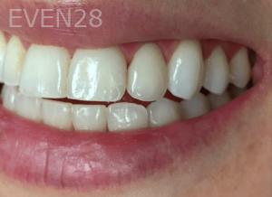Jocelynn-Vida-Sustaita-Root-Canal-Treatment-After-1