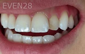 Jocelynn-Vida-Sustaita-Root-Canal-Treatment-Before-1