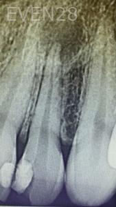 Jocelynn-Vida-Sustaita-Root-Canal-Treatment-Before-1b