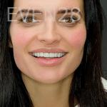Jocelynn-Vida-Sustaita-Smile-Makeover-After-7