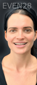 Jocelynn-Vida-Sustaita-Smile-Makeover-Before-7