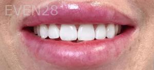Jocelynn-Vida-Sustaita-Teeth-Whitening-After-1