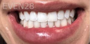 Jocelynn-Vida-Sustaita-Teeth-Whitening-After-2