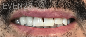 Jocelynn-Vida-Sustaita-Teeth-Whitening-After-3