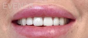 Jocelynn-Vida-Sustaita-Teeth-Whitening-Before-1