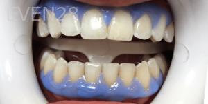 Jocelynn-Vida-Sustaita-Teeth-Whitening-Before-2