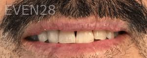 Jocelynn-Vida-Sustaita-Teeth-Whitening-Before-3