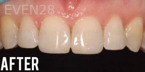 Joyce-Kahng-Dental-Bonding-after-1