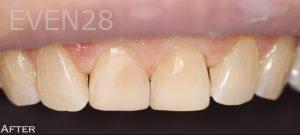 Joyce-Kahng-Dental-Bonding-after-2