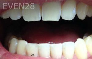 Joyce-Kahng-Dental-Bonding-after-5