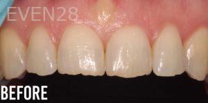 Joyce-Kahng-Dental-Bonding-before-1