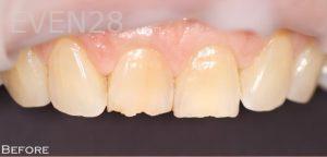 Joyce-Kahng-Dental-Bonding-before-2