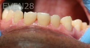 Joyce-Kahng-Dental-Bonding-before-4