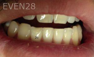 Joyce-Kahng-Dental-Bonding-before-5